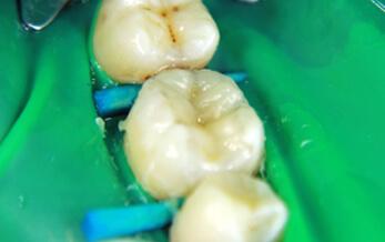 ترمیم های همرنگ دندان