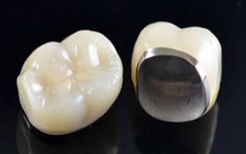 پروتزهای ثابت (روکش دندان)