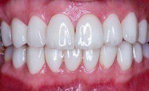 لمینتهای ساخته شده با کمک دندانپزشکی دیجیتال