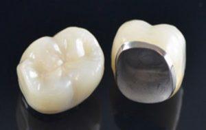 پروتزهای ثابت (روکش دندان) -وبسایت دکتر افشین کاوسی