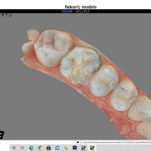 ترمیمهای کامپوزیتی همرنگ دندان-دکتر افشین کاوسی