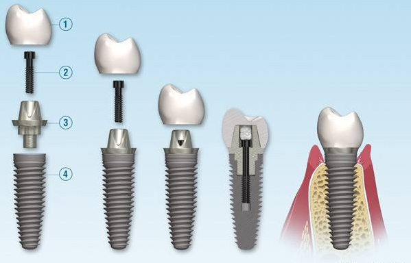 ایمپلنت های دندانی - وبسایت دکتر افشین کاوسی