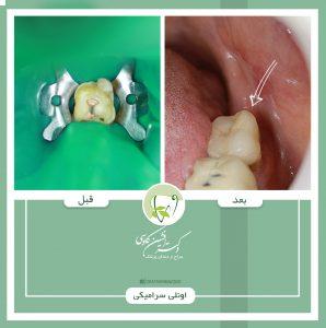 ترمیم های همرنگ دندان -وبسایت دکتر افشین کاوسی