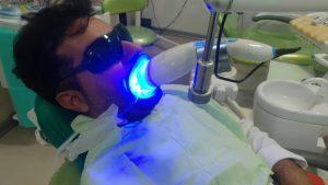 سفید کردن دندان (بلیچینگ) - از مقالات وبسایت دکتر افشین کاوسی