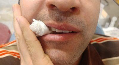 بایدها و نبایدهای پس از کشیدن دندان و جراحی ها-نحوه نگهداری گاز بر روی دندانها-از وبسایت دندانپزشکی دکتر افشین کاوسی