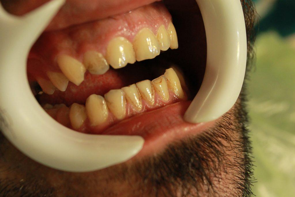 چرا جرمگیری دندانها لازم است؟ - از مقالات وبسایت دکتر افشین کاوسی، جراح و دندانپزشک