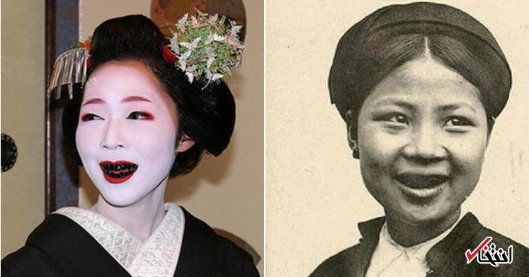 زیبایی دندان،از واقعیت تا توهم قسمت اول-مقالات وبسایت دکتر افشین کاوسی