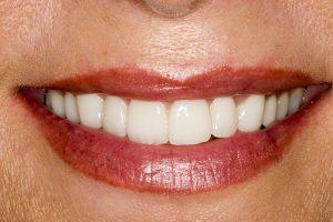 زیبایی دندان،از واقعیت تا توهم قسمت دوم-مقالات وبسایت دکتر افشین کاوسی