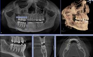 دندانپزشکی و تکنولوژی،قسمت سوم دندانپزشکی دیجیتال