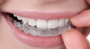 دندان قروچه ، راههای کنترل و درمان