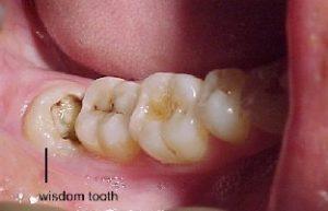 پرسش و پاسخهای رایج دندانپزشکی(1)