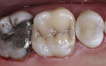 انواع ترمیم های همرنگ دندان