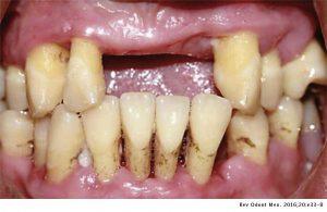 بیماری دیابت و مشکلات دندانپزشکی مرتبط با آن-مقالات وبسایت دکتر افشین کاوسی